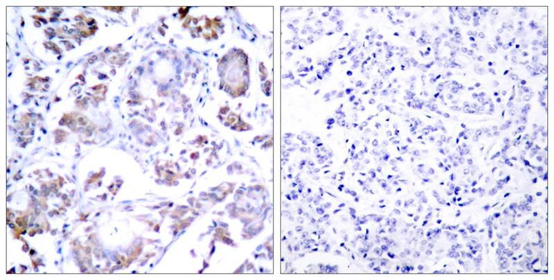 Polyclonal Antibody to NFkB-p65 (Ab-254)