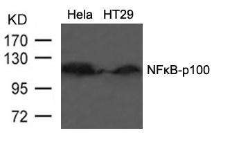 Polyclonal Antibody to NFkB-p100/p52 (Ab-866)