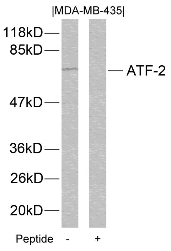 Polyclonal Antibody to ATF2 (Ab-112 or 94)
