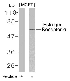 Polyclonal Antibody to Estrogen Receptor- Alpha (Ab-106)