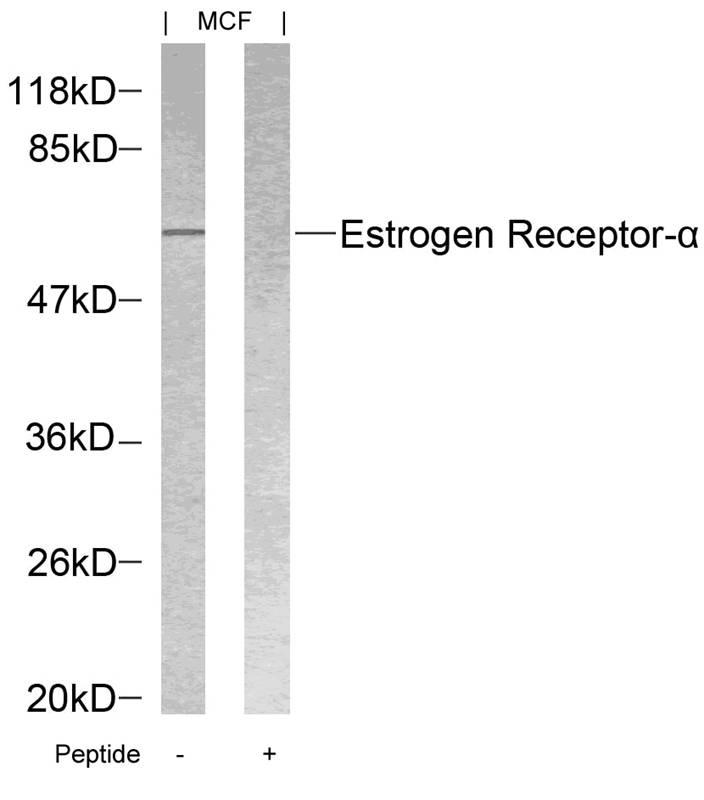 Polyclonal Antibody to Estrogen Receptor- Alpha (Ab-118)
