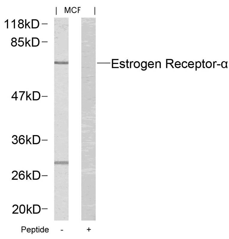 Polyclonal Antibody to Estrogen Receptor- Alpha (Ab-167)