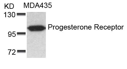 Polyclonal Antibody to Progesterone Receptor (Ab-190)