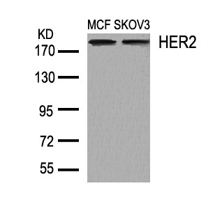 Polyclonal Antibody to HER2 (Ab-1248)