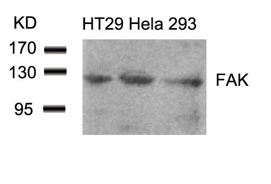 Polyclonal Antibody to FAK (Ab-861)
