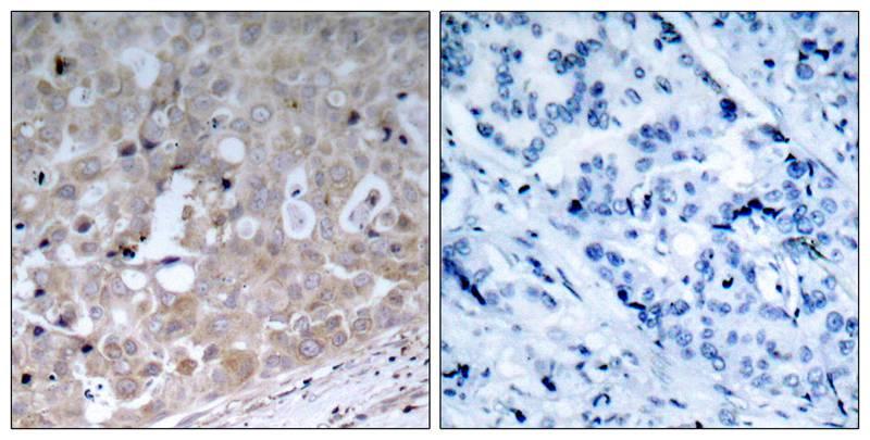 Polyclonal Antibody to VEGFR2 (Ab-1175)