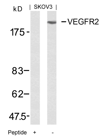 Polyclonal Antibody to VEGFR2 (Ab-951)