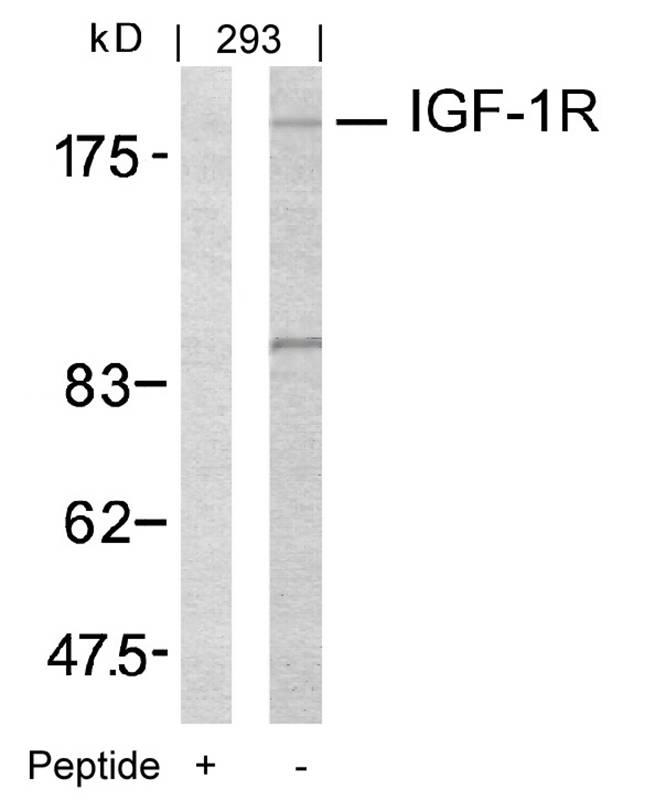 Polyclonal Antibody to IGF-1R (Ab-1161)