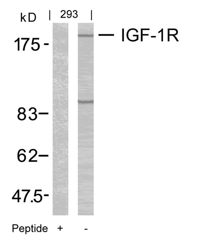 Polyclonal Antibody to IGF-1R (Ab-1165/1166)