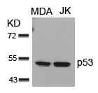 Polyclonal Antibody to p53 (Ab-15)