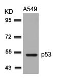 Polyclonal Antibody to p53 (Ab-315)