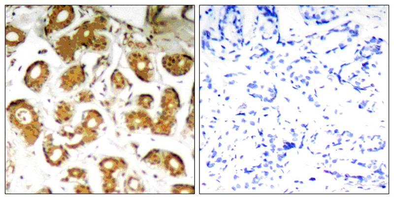 Polyclonal Antibody to NFkB-p65 (Ab-505)