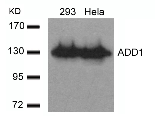 Polyclonal Antibody to ADD1 (Ab-726)