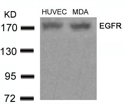 Polyclonal Antibody to EGFR (Ab-678)