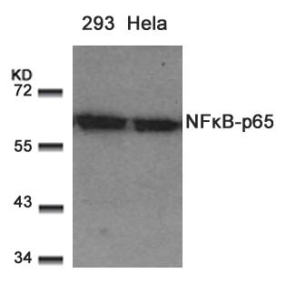 Polyclonal Antibody to NFkB-p65 (Ab-529)