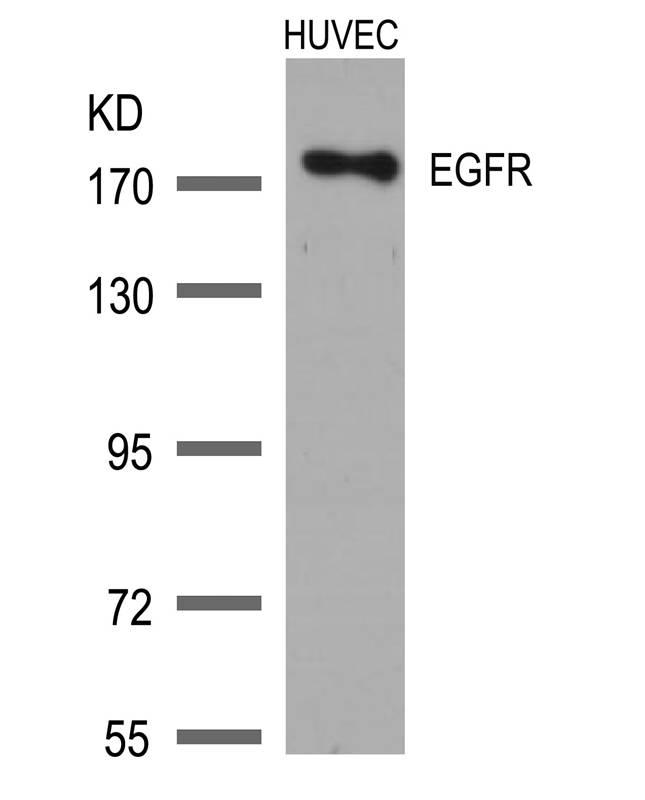 Polyclonal Antibody to EGFR (Ab-1172)