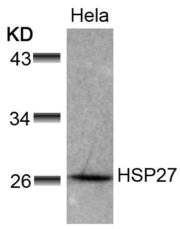 Polyclonal Antibody to HSP27 (Ab-78)