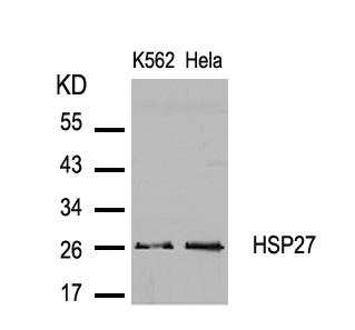 Polyclonal Antibody to HSP27 (Ab-82)