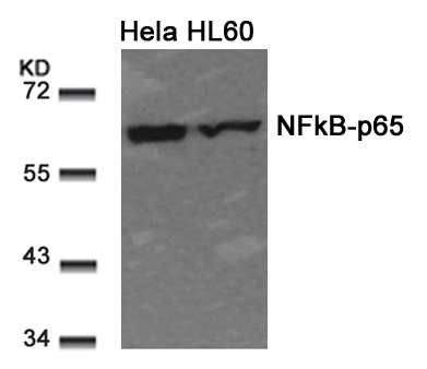 Polyclonal Antibody to NFkB-p65 (Ab-311)