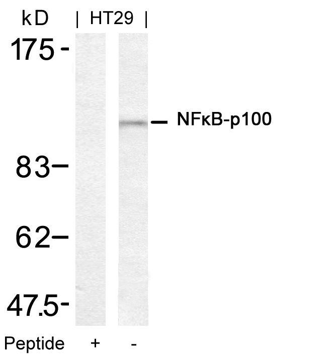 Polyclonal Antibody to NFkB-p100/p52 (Ab-872)
