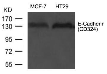 Polyclonal Antibody to E-Cadherin(CD324)