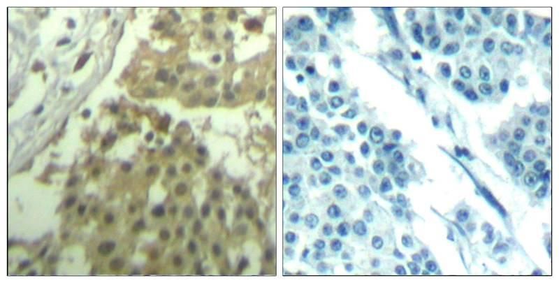 Polyclonal Antibody to CDC2 (Ab-19)