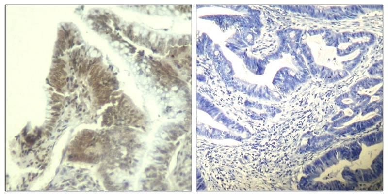 Polyclonal Antibody to CDK6 (Ab-13)