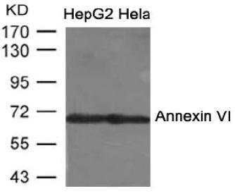 Polyclonal Antibody to Annexin VIAntibody