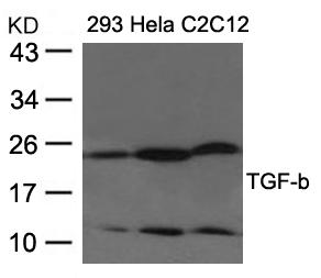 Polyclonal Antibody to TGF-b