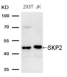 Polyclonal Antibody to SKP2 (Ab-64)