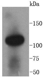 Angiotensin Converting Enzyme 2 Antibody (ACE2), Rabbit mAb