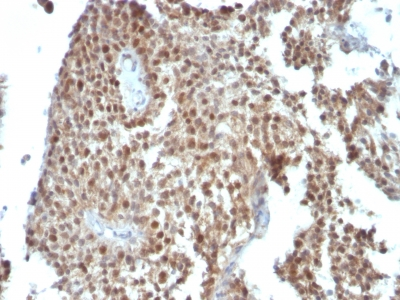 Monoclonal Antibody to p21WAF1 (Tumor Suppressor Protein)(Clone : SPM306)
