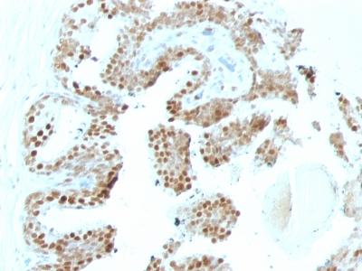 Monoclonal Antibody to p57Kip2 (Mitotic Inhibitor/Suppressor Protein)(KP10 + KIP2/880)(Discontinued)