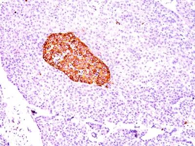 Monoclonal Antibody to Chromogranin A / CHGA (Neuroendocrine Marker)(Clone : CGA/414)(Discontinued)