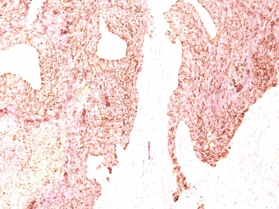 Monoclonal Antibody to Chromogranin A / CHGA (Neuroendocrine Marker)(Clone : SPM339)