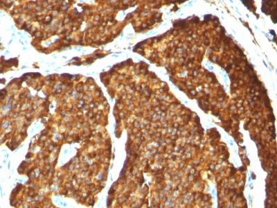 Monoclonal Antibody to Chromogranin A / CHGA (Neuroendocrine Marker)(Clone : CHGA/777)