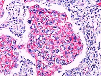 Polyclonal Antibody to beta-Catenin (p120)
