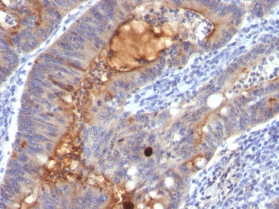 Monoclonal Antibody to IgA Secretory Component / ECM1(Clone : SPM217)