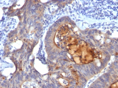 Monoclonal Antibody to IgA Secretory Component / ECM1(Clone : ECM1/792)