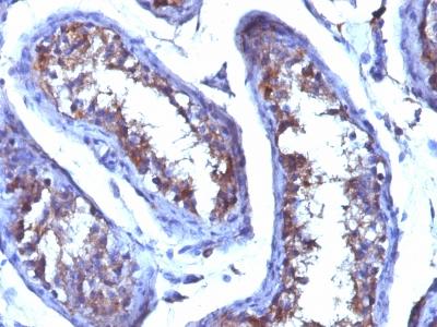 Monoclonal Antibody to Testosterone(Clone : 4E1G2)