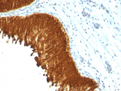 Monoclonal Antibody to Cytokeratin, Multi (Epithelial Marker)(Clone : KRT/457)(Discontinued)