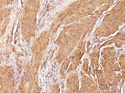 Monoclonal Antibody to Actin, Muscle Specific (Muscle Cell Marker)(Clone : SPM160)