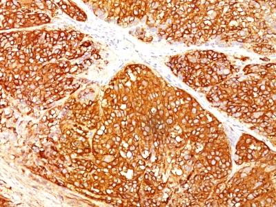 Monoclonal Antibody to Melanoma Marker (MART-1 + gp100 + Tyrosinase)(A103 + HMB45 + T311)