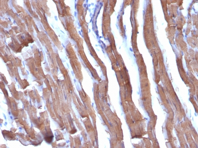 Monoclonal Antibody to Actin, Muscle Specific (Muscle Cell Marker)(HHF35 + MSA/953)