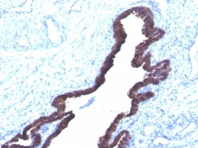 Monoclonal Antibody to Cytokeratin 8/18(K8.8 + DC10)