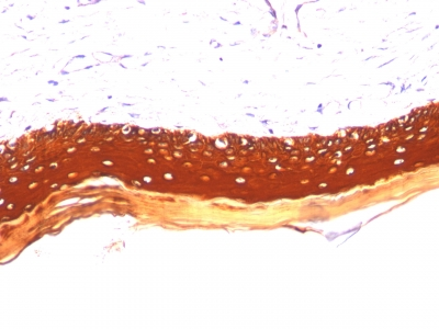 Monoclonal Antibody to Cytokeratin, Acidic (Type I or LMW) (Epithelial Marker)(Clone : KRTL/1077)