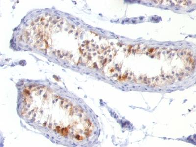 Monoclonal Antibody to MART-1 / Melan-A / MLANA (Melanoma Marker)(Clone : MLANA/788)