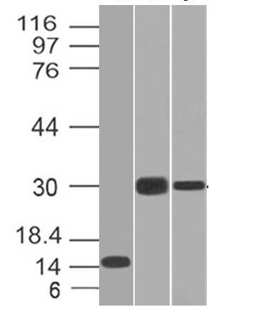 Monoclonal Antibody to CELA3B / ELA3B (Pancreatic Function Marker)(Clone : CELA3B/1218)