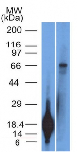 Monoclonal Antibody to TRIM29 (Lung Squamous Cell Carcinoma Marker)(Clone : TRIM29/1042)