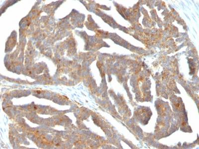 Monoclonal Antibody to GnRH-Receptor / LH-RH Receptor(Clone : F1G4; same as GNRH03)
